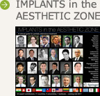 書籍 IMPLANTS in the AESTHETIC ZONEのご紹介